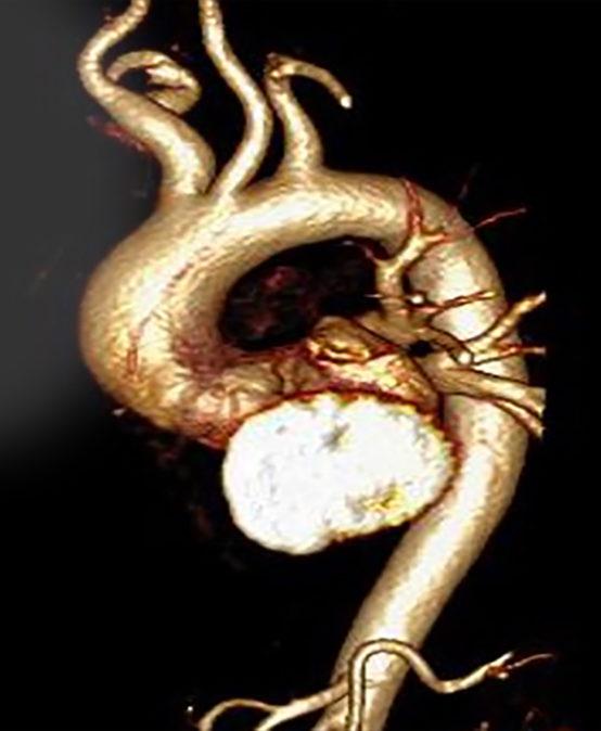 II Máster online de Ecocardiografía en Emergencias Médicas, Anestesia, Reanimación y Cuidados Críticos (Eco transtorácico y transesofágico)